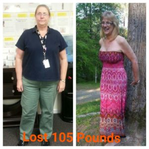 connie-hansen-front-view-before-and-after-lost-100lbs