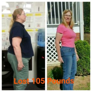 connie-hansen-side-view-before-and-after-lost-100lbs