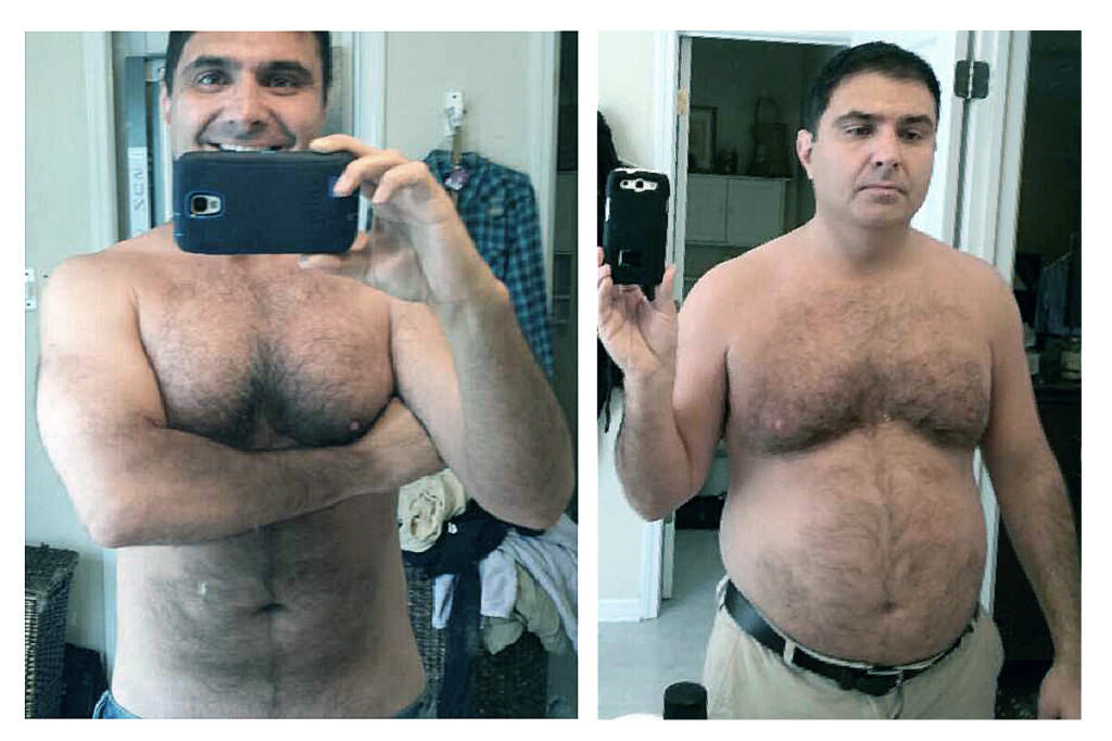 Dr. Rob's Before and AFter Pic