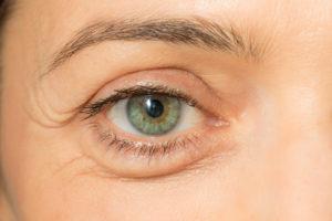 Woman Bags Under Eye Adrenal Fatigue